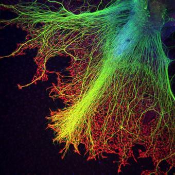 Dr. Juan Carlos Izpisúa, Center of Regenerative Medicine in Barcelona (CMRB)  Neurons growing over astrocytes in a human stem cell embryo body