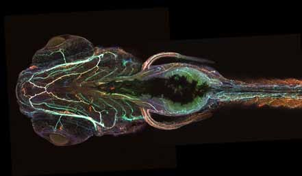 Ventral view of a Tau transgenic zebrafish stained for the neuronal protein tubulin (in green), human Tau (in red), and disease-modified human Tau (in blue)