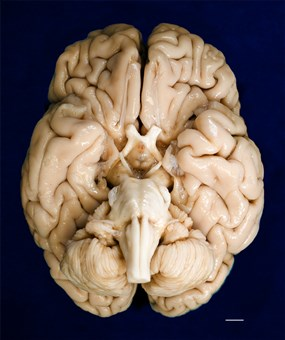The ventral surface of H.M's brain taken before the cryopreservation process