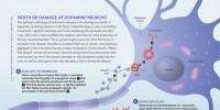 image: Death or Damage of Dopamine Neurons