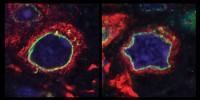 image: New Culprit for Parkinson's?