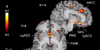 image: Personality Predicts Placebo Effect