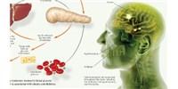 image: Insulin's Role in Body and Brain