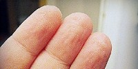 image: The Reason for Wrinkled Fingers