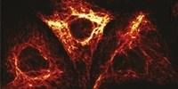 image: Next Generation: Dynamic, Nanoscale GFP