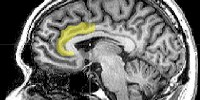 image: Brain Activity Predicts Re-arrest