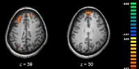 image: Bad Stats Plague Neuroscience