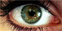 image: Genes Get in Your Eye