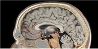 image: Opinion: The Present and Future of Neurogenomics