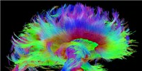 image: Image of the Day: Brain Fibers