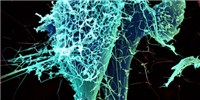 image: Image of the Day: Ebola Infection