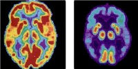 image: A Blood Test for Alzheimer's?