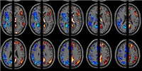 image: Brain-Based Labels Bunk?