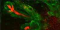 image: Replacement Secretory Glands