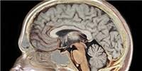 image: Genetic Diversity in the Brain