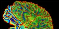 image: NIH Calls for BRAIN Proposals