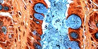 image: Image of the Day: Abnormal Tissue