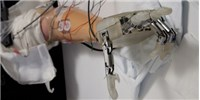 image: Prosthesis Re-creates Sensation of Touch
