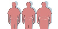 image: Obesity Complicates Colorectal Cancer