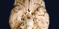 image: H.M.'s Brain, 1953–Present