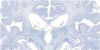 image: H.M.'s Brain