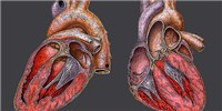 image: Diseased Heart Chip