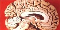 image: Brains vs. Biceps?
