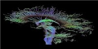 image: Image of the Day: Cerebral Connections