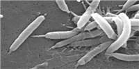 image: Ulcer-forming Bacteria Target Tiny Traumas