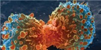 image: Flipped Fat-burning Linked to Cancer Cachexia