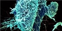 image: Social Data for Ebola Surveillance