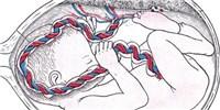 image: Valuable Cord Blood Sits Unused