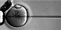 image: UK Supports Three-Parent IVF