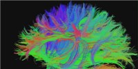 image: Human Brain Project Reviewed