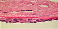 image: Editing Human Blood Vessel Cells with CRISPR