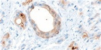 image: Prostate Organoid from Stem Cells