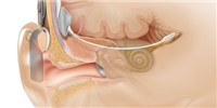 image: Lending an Ear