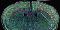 image: Endogenous Retrovirus Active in ALS