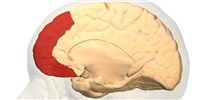 image: Brain Fold Tied to Hallucinations
