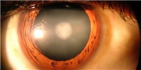 image: Surgery, Stem Cells Treat Cataracts