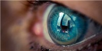 image: Contacts May Affect Eye Microbiome