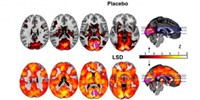 image: Psychedelic Neuroimaging