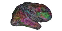 image: Locating Language within the Brain