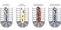 image: Transplanted Fecal Microbes Stick Around