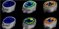 image: Quantifying Consciousness