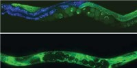 image: Questions Over <em>C. elegans</em> Life Span Factors