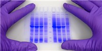 image: LabQuiz: What's Your Western Blot Personality?