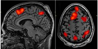 image: Faulty Statistics Muddy fMRI Results