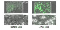 image: Arming Synthetic Bacteria Against Cancer