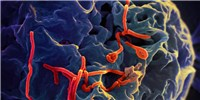 image: Ebola Can Persist 19 Months in Semen, Study Finds